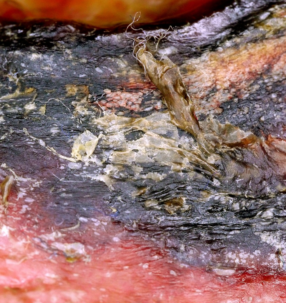 Nekrose mit Granula und Bindegwebe an weißen Fädchen